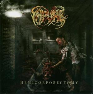 Hemicorporectomy cover art